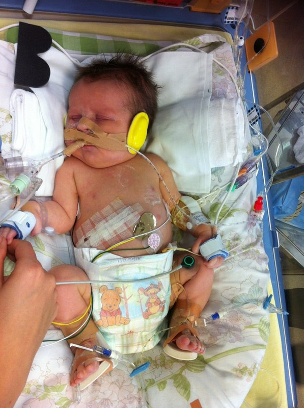 Baby Born At 20 Weeks Survival Rate